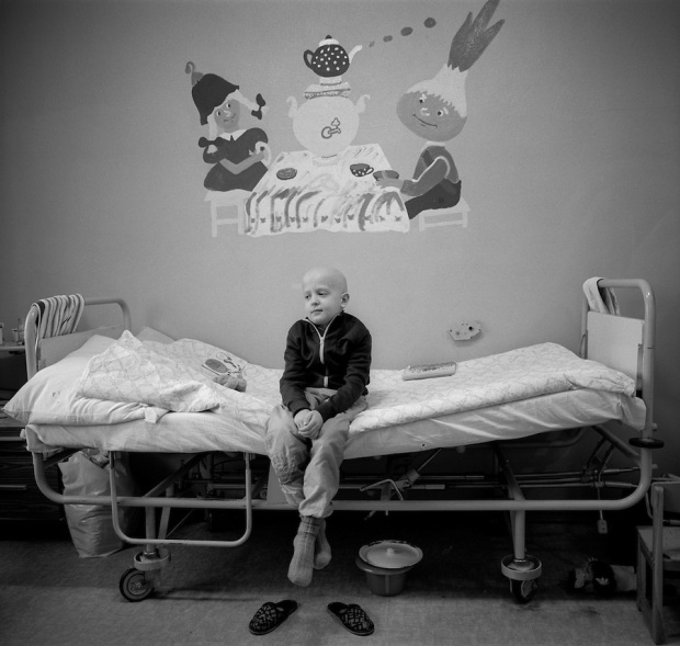 Minsk, Belarus, Ocober 1995. The explosion at the Chernobyl Nuclear Power Plant on April 26 1986 was the worst nuclear accident in history. Children undergoing cancer treatment against the effects of radiation from the accident.