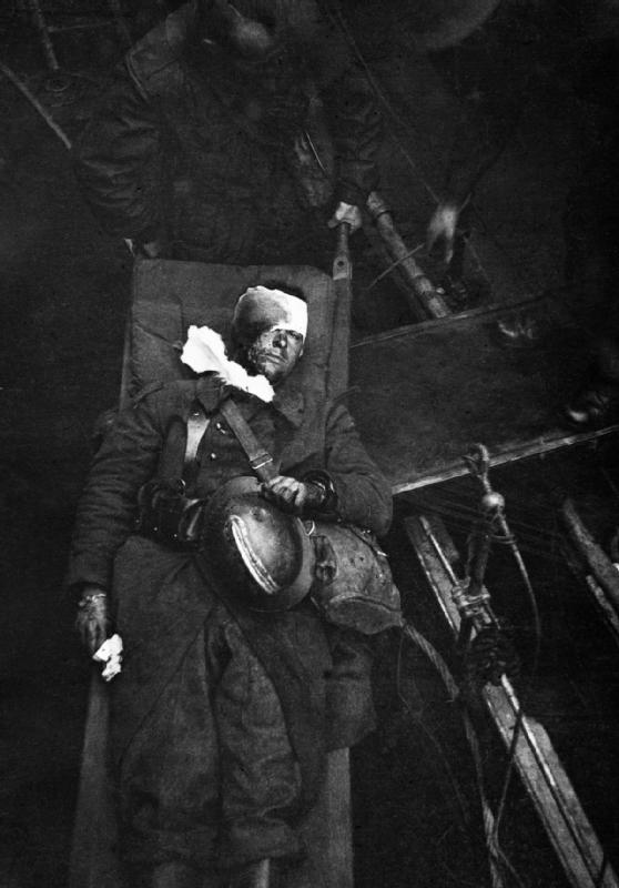 Wounded_French_soldier_after_evacuation_from_Dunkirk