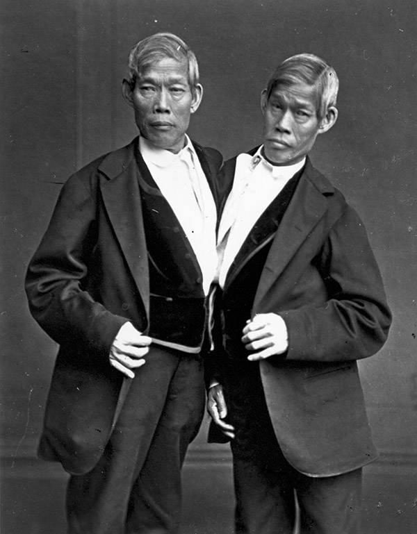 chang-eng-bunker-twins